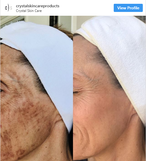 before after microdermabrasion